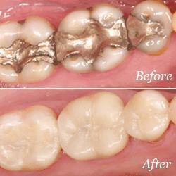 dental crowns for general dentistry