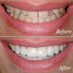 bridges general dentistry