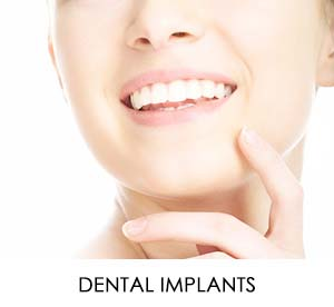 Middletown-HamiltonTownship-Dental-Implants