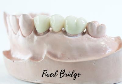 Fixed Bridge For Teeth
