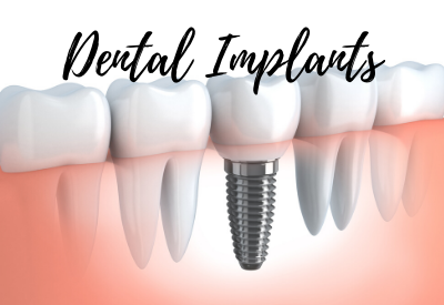 dental implants middletown and hamilton township nj