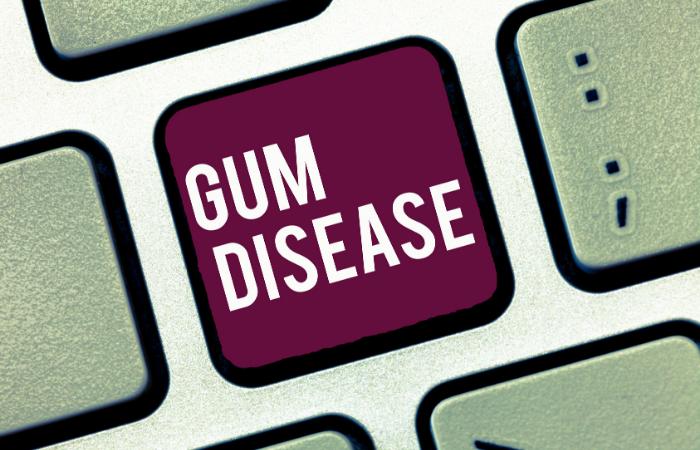Gum Disease Middletown and Hamilton NJ
