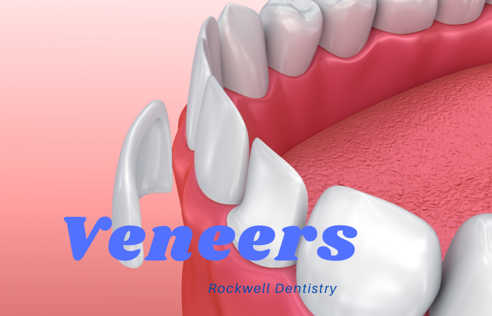 Veneers Middletown and Hamilton New Jersey