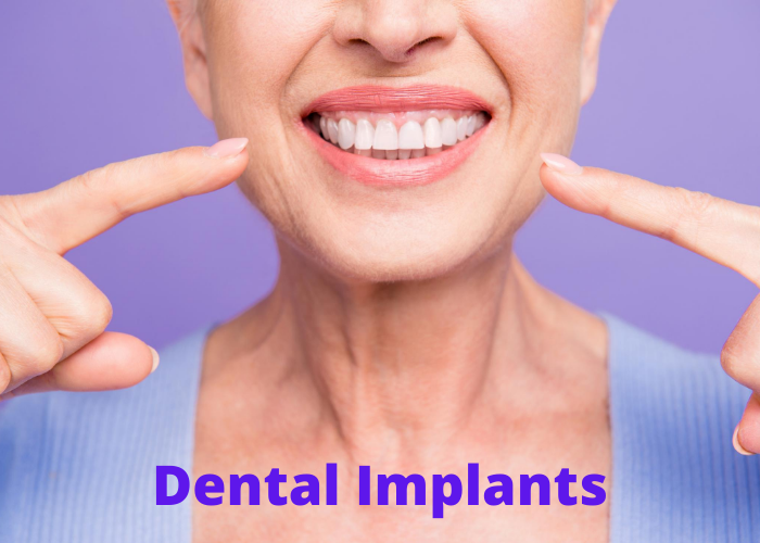 dental implants middletown and hamilton nj